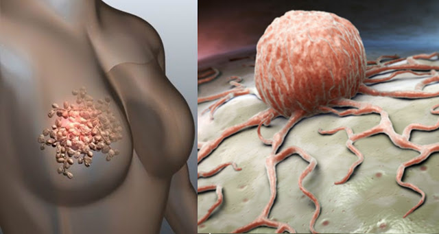 women-breast-cancer-symptoms-and-awareness