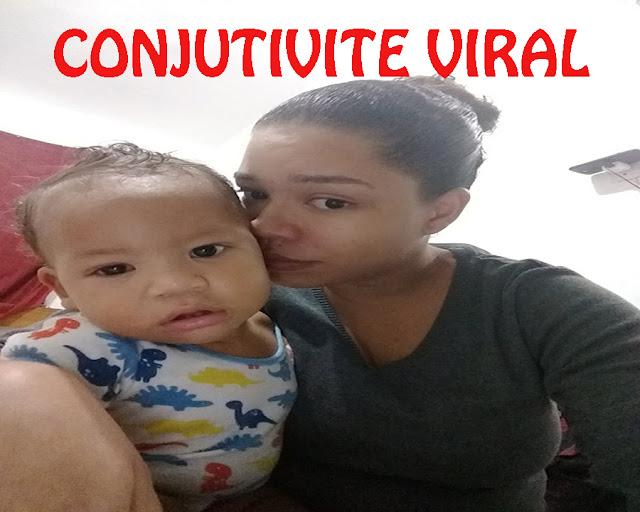 CONJUTIVITE MÃE E BEBÊ