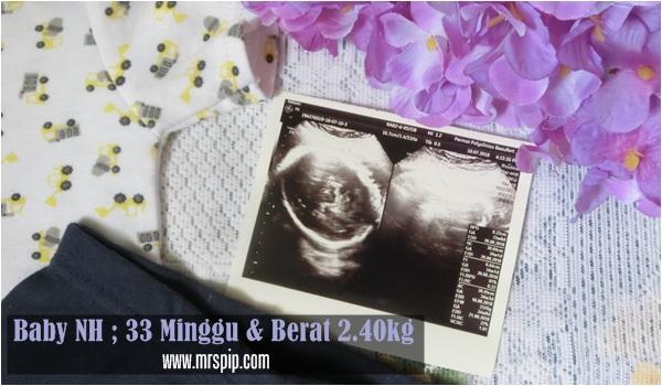 scan baby 33 weeks