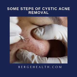 Cystic Acne And Blackhead Removal