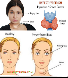 Causes, symptoms, treatment and signs of hyperthyroidism in the body.