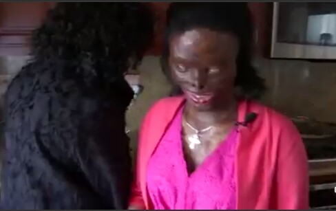 Community rally behind Ethiopian woman disfigured, blinded by acid attack by her abusive husband after she asked for a divorce