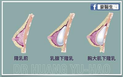 高雄隆乳手術放置位置示意圖