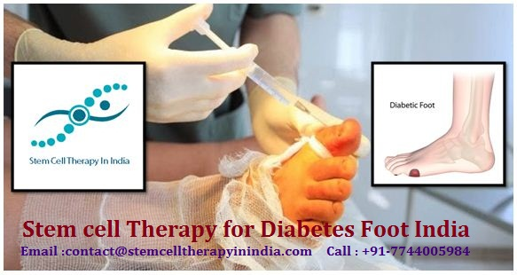 Get the Benefits of Stem cell Therapy for Diabetes Foot India