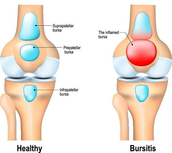 Cara mengobati rematik telapak kaki