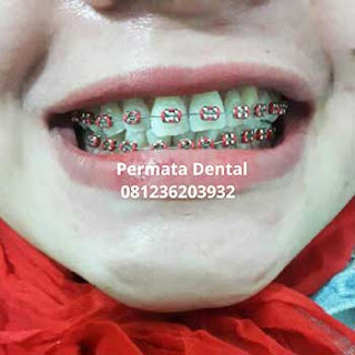pasang behel gigi bali| pasang behel gigi denpasar| pasang behel gigi kute| pasang behel gigi nusadua | pasang behel gigi badung | pasang behel gigi gatsu| pasang behel gigi jimbaran | pasang behel gigi murah | pasang behel gigi mudah | pasang behel gigi cepat | pasang behel gigi aman | pasang behel gigi atas | pasang behel gigi bawah | pasang behel gigi atas bawah | pasang behel fashion | pasang behel gigi | pasang behel gigi gingsul | pasang behel gigi cantik | pasang behel gigi perawatan | pasang behel ahli gigi | pasang behel gigi berlubang | pasang behel gigi renggang | gambar pasang behel gigi | foto pasang behel gigi | pasang behel gigi kelinci | pasang behel gigi lepas pasang | pasang behel gigi promo | behel gigi untuk gigi tonggos | pasang behel elastis | pasang behel gigi ompong | pasang behel gigi hiasangambar foto trand behel bracket kawat gigi fashion