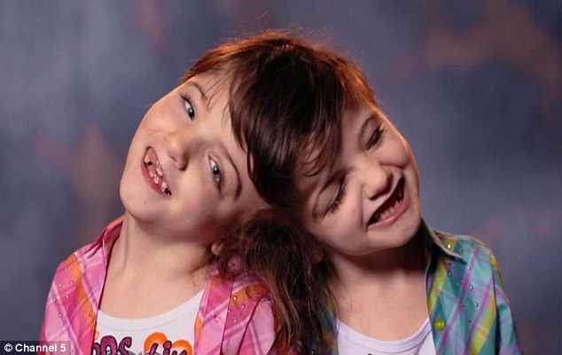 The seven-year-old twins who can see through each other's EYES
