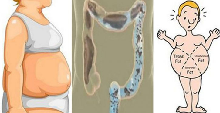 Do You Have An Enlarged Stomach? Here's How To Say Goodbye To Constipation And Bloating