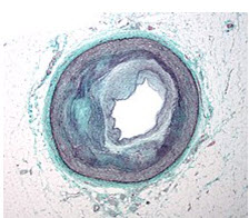 Macrography of an Coronary Artery In Disease