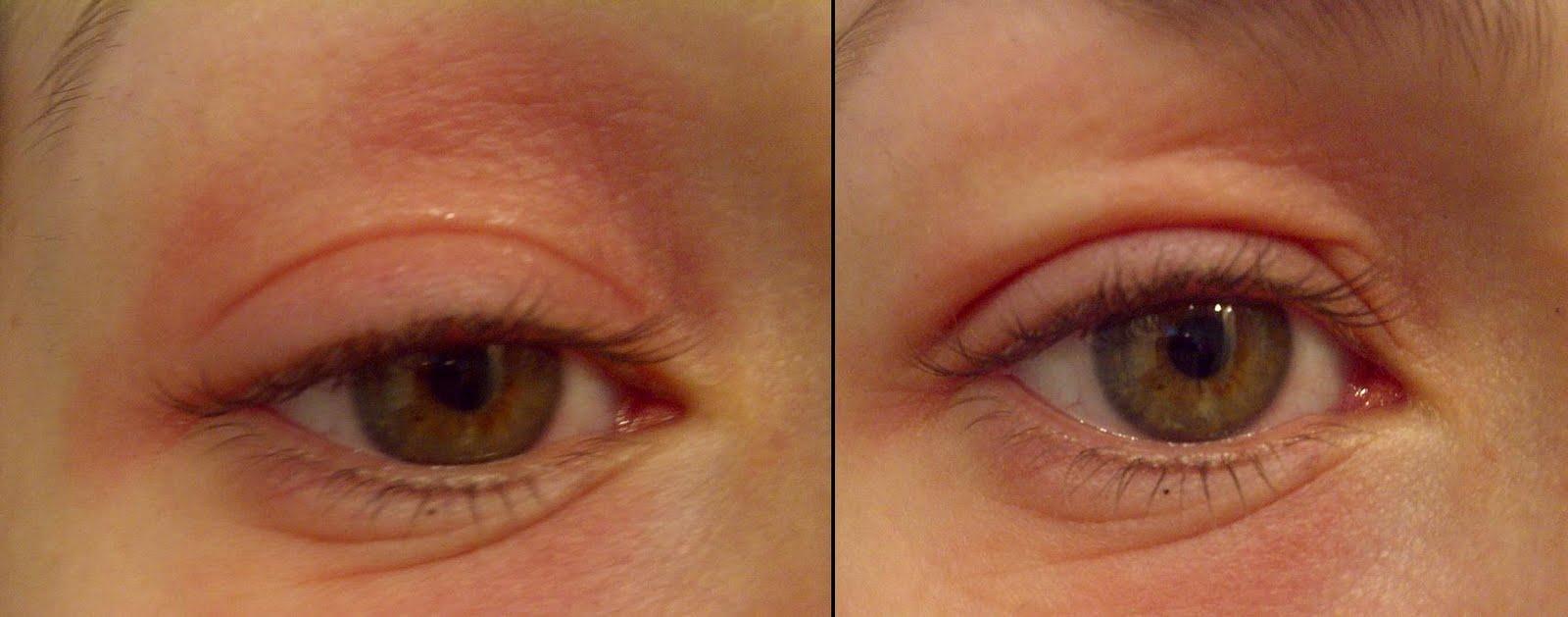 huid allergische reactie