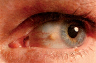 Yellow white pinguecula on conjunctiva
