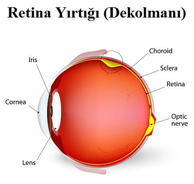 Retina Yırtığı (Dekolmanı) Ameliyatı Sonrası