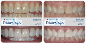 Teeth Whitening With Whitestrips4u Co Uk April 2012