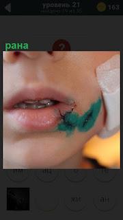 Лицо ребенка с раной на щеке, замазанный зеленкой и лейкопластырь