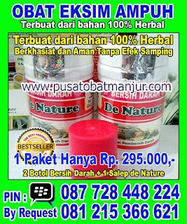 http://solusieksimampuh.blogspot.com/2016/04/obat-eksim-kering-yang-manjur-dan-topcer.html