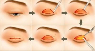 Cắt mỡ mí mắt có đau không