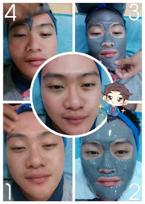 men chemical peeling at Citra Beauty Center Wijaya