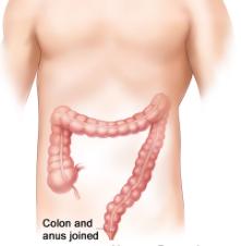 SYNDROME DU COLON IRRITABLE = Colite spasmodique = Colopathie fonctionne