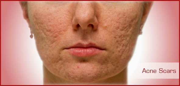 How to get rid of acne scars in Malaysia