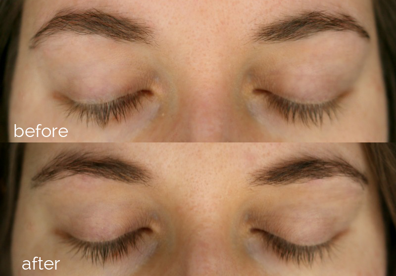RapidLash Before After