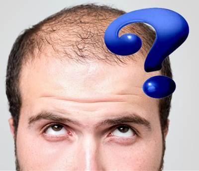Las cosas que debes evitar para que tu cabello no se caiga