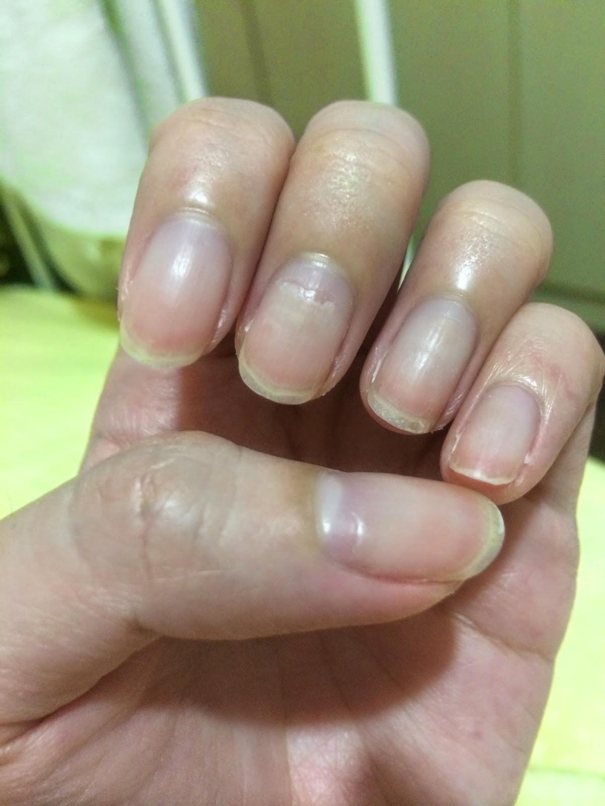 The Dettol Diaries Peeling Fingernails After Hfmd