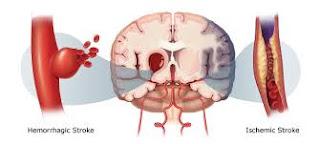 stroke-hemoragik-dan-iskemik