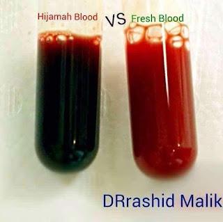 darah toksin dan darah bersih