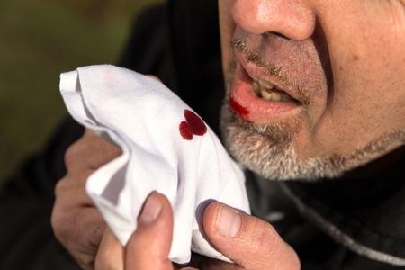 Obat Batuk Berdarah Di Apotik
