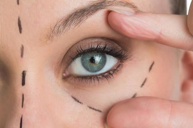 ازالة التجاعيد حول العين