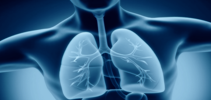 What's Mesothelioma and What's Is Type of Mesothelioma