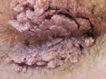 Obat Penyakit Hpv