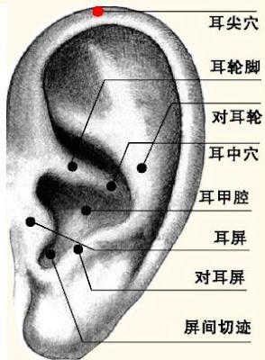耳尖穴位 | 耳尖穴痛位置 - 穴道按摩經絡圖解 | Source:zhongyibaike.com