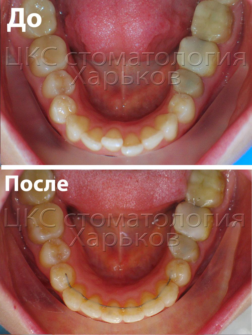 использование виниров в стоматологии