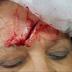 Aluno arremessa objeto e fere vice-diretora de escola no rosto