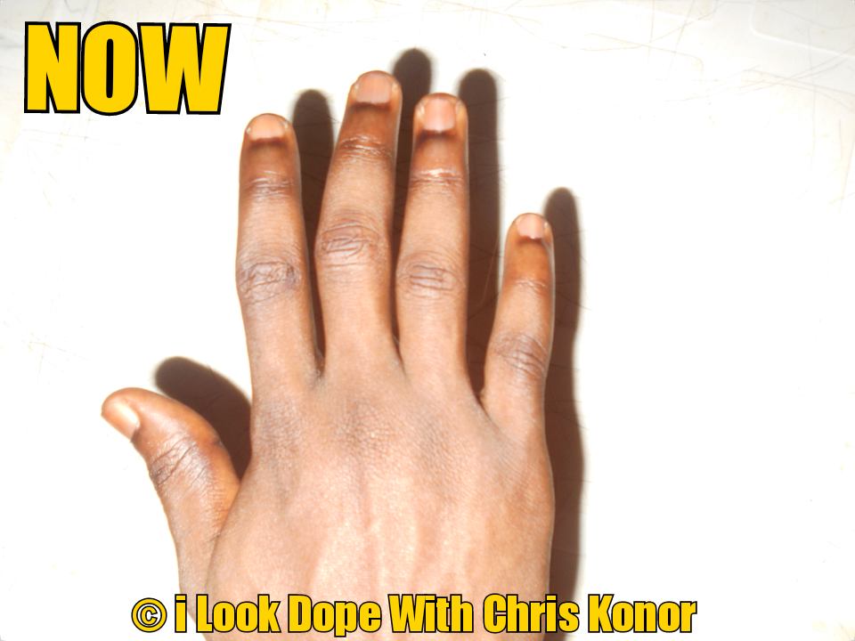 how to remove dark toe knuckles, how to remove dark toe knuckles, how to remove dark spots on knuckles, how to remove dark skin on knuckles, how to get rid of dark knuckles and elbows, how to get rid of dark knuckles on hands, how to get rid of dark knuckles wikihow, how to get rid of dark knuckles home remedy, how to get rid of dark knuckles and knees, how to get rid of dark knuckles on your feet, how to get rid of dark knuckles permanent, how to remove dark knuckles, how to remove dark knuckleson fingers, how to remove dark knucklesfast, how to get rid of dark knuckles and toes, how to get rid of dark knuckles skin care talk, how to get rid of dark knuckles dailymotion, how to get rid of dark dry knuckles, how to remove dark spots from knuckles, how to get rid of dark finger knuckles, how to get rid of dark feet knuckles, how to get rid of severe dark knuckles fast, how to get rid of dark knuckles on fingers naturally, how to get rid of dark knuckles on fingers fast, how to remove dark knuckleson hands, how to get rid of dark hand knuckles, how to remove dark knucklesnaturally, how to get rid of dark knuckles naturally, how to get rid of dark knuckles on toes, how to get rid of dark knuckles, how to get rid of dark rough knuckles, how to get rid of dark knuckles yahoo