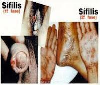 Obat Sipilis Yang Menyembuhkan Tanpa Efek Samping