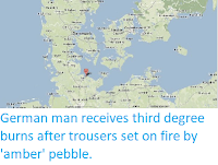 http://sciencythoughts.blogspot.co.uk/2014/01/german-man-receives-third-degree-burns.html