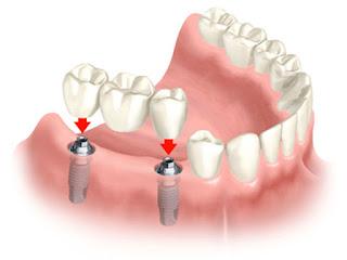 Để chân răng nhân tạo tốt như chân răng sinh lý cần thực hiện tại địa chỉ ghép răng Implant tốt nhất