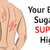 14 Early Warning Signs Your Blood Sugar is SUPER High (Eat These Foods to REVERSE it).