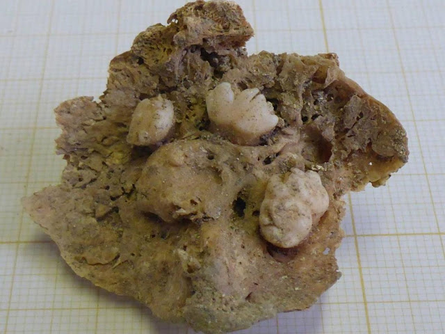 Centuries-old ovarian tumour discovered in Lisbon grave