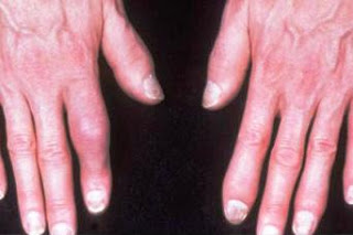 Facts About Psoriatic Arthritis