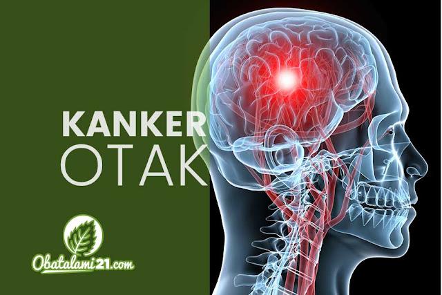 Gejala, Penyebab dan Cara Mengobati Kanker Otak