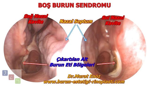 Boş burun sendromu - Boş burun sendromu tedavisi - Empty nose syndrome - Burun eti alınmasının riskleri - Kronik atrofik rinit - Ozena - Sekonder atrofik rinit - Normal nazal havayolu aerodinamiğinin kaybı - Burun etlerinin görevleri