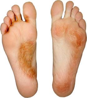 kaki berjamur