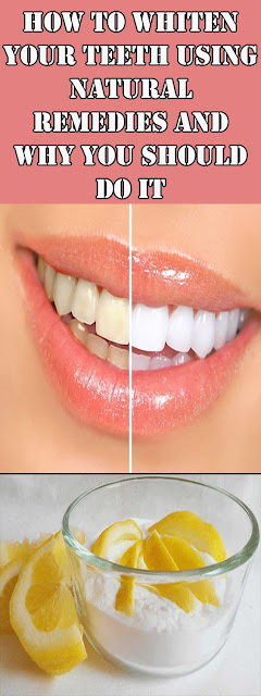 How To Whiten Your Teeth Using Natural Remedies And Why You Should Do It