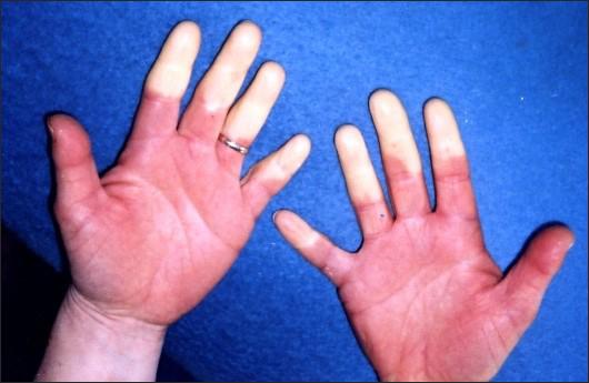 Hand-arm Vibration Syndrome, Vibration White Finger