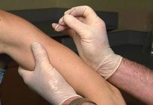 การรักษาโรคฝีดาษ