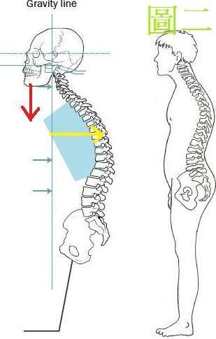 脊椎側彎, 脊椎側彎惡化, 脊椎側彎矯正, 脊椎側彎治療, 脊椎側彎復健, 脊椎側彎手術, 脊椎側彎 物理治療