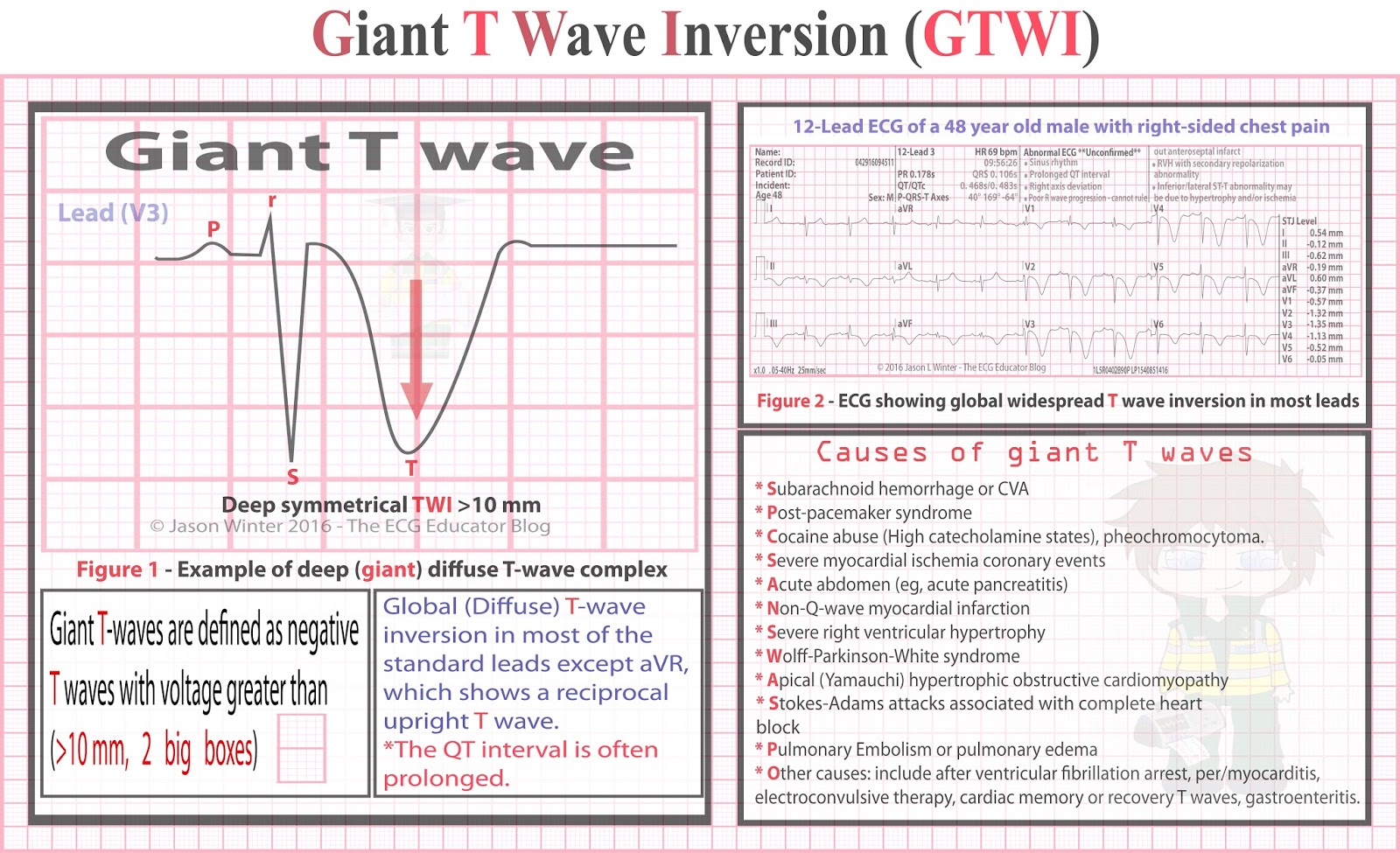ECG Educator Blog : Giant T waves